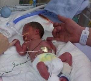 Baby born at 28 weeks